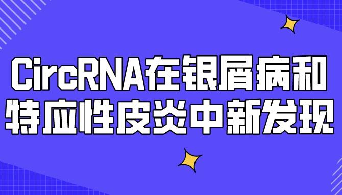 CircRNA在銀屑病和特應性皮炎中新發現